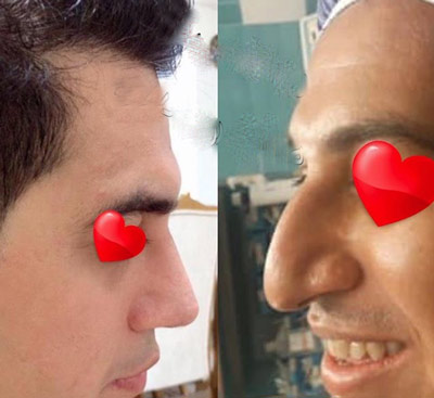 نمونه جراحی بینی دکتر حیدری زاده3