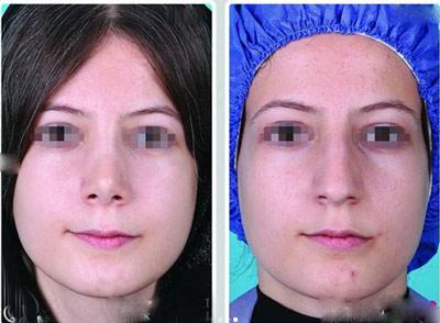نمونه جراحی بینی دکتر جلالی3