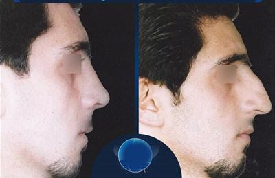 نمونه جراحی بینی دکتر سنمار2