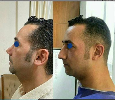 نمونه جراحی بینی دکتر ناصری4