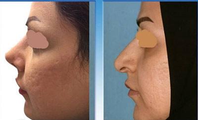 نمونه جراحی بینی دکتر یاوری3