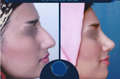 نمونه جراحی بینی دکتر سنمار4