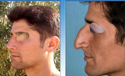 نمونه جراحی بینی دکتر یاوری4