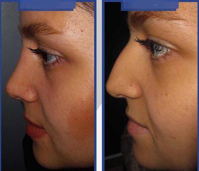 نمونه کار جراحی بینی دکتر طاهری4