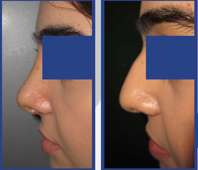 نمونه کار جراحی بینی دکتر طاهری2