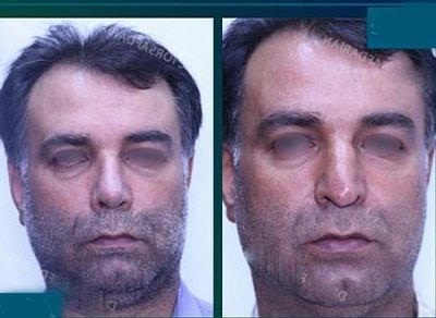 نمونه جراحی بینی دکتر صفدریان4