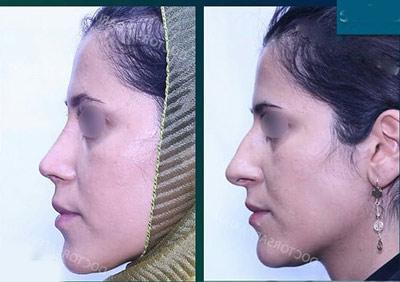 نمونه جراحی بینی دکتر صفدریان2
