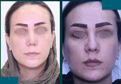 نمونه جراحی بینی دکتر صفدریان3