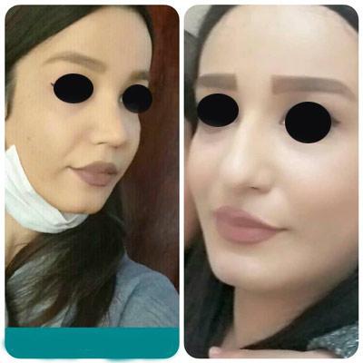 نمونه کار جراحی بینی دکتر حسن طاهری1