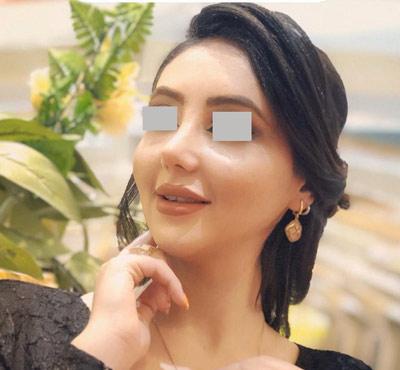 نمونه کار دکتر جواد یار احمدی جراح بینی در شیراز10