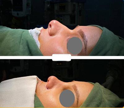 نمونه کار دکتر جواد یار احمدی جراح بینی در شیراز 2