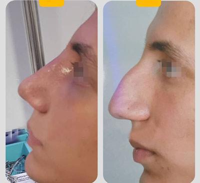 نمونه کار جراحی بینی دکتر موسوی1