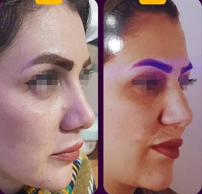 نمونه کار جراحی بینی دکتر موسوی2