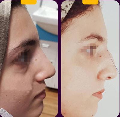 نمونه کار جراحی بینی دکتر موسوی4