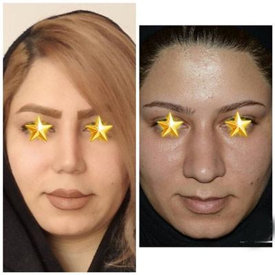 نمونه کار جراحی بینی دکتر دولتی3