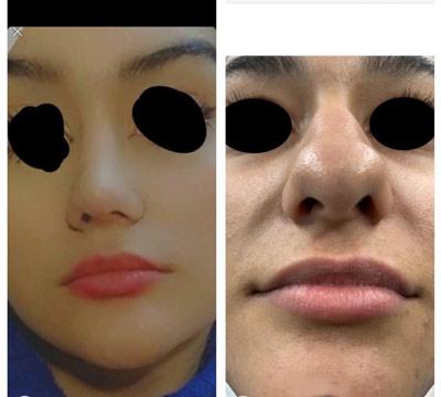 نمونه کار جراحی بینی دکتر شیرزاده1