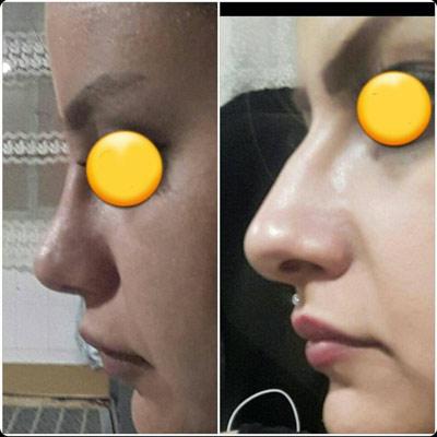 نمونه کار جراحی بینی دکتر شیرزاده3