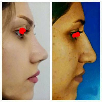 نمونه کار جراحی بینی دکتر زارعی1
