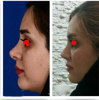 نمونه کار جراحی بینی دکتر زارعی2