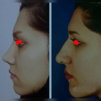 نمونه کار جراحی بینی دکتر زارعی3