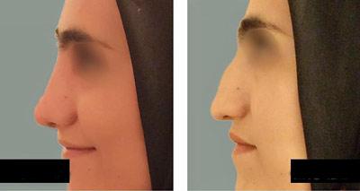 نمونه کار جراحی بینی دکتر حاجی میرزا1