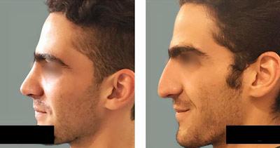 نمونه کار جراحی بینی دکتر حاجی میرزا4