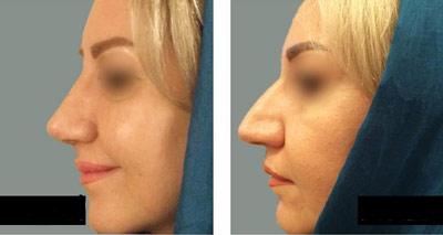 نمونه کار جراحی بینی دکتر حاجی میرزا2