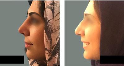 نمونه کار جراحی بینی دکتر حاجی میرزا3