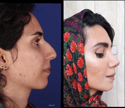 نمونه کار جراحی بینی دکتر صنیعی3