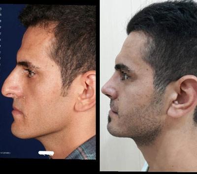 نمونه کار جراحی بینی دکتر صنیعی4