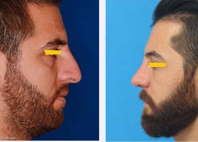 نمونه جراحی بینی دکتر نمازی فر4