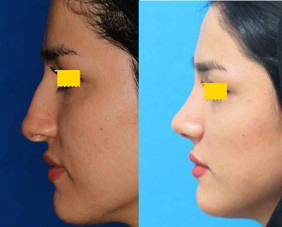 نمونه جراحی بینی دکتر نمازی فر2