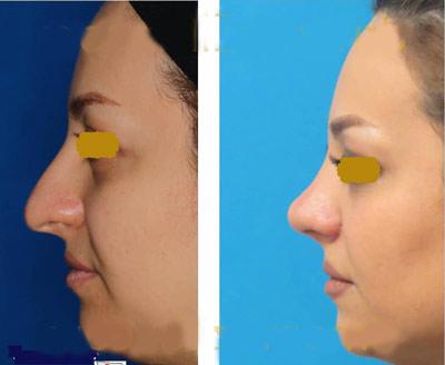 نمونه جراحی بینی دکتر نمازی فر3