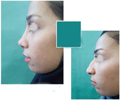 نمونه جراحی بینی دکتر نیک تبار1