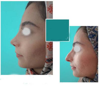 نمونه جراحی بینی دکتر نیک تبار2