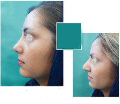 نمونه جراحی بینی دکتر نیک تبار3