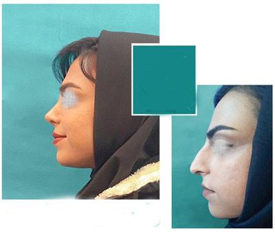 نمونه جراحی بینی دکتر نیک تبار4