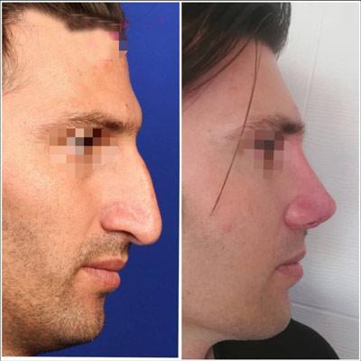 نمونه کار جراحی بینی دکتر نورمحمدی4