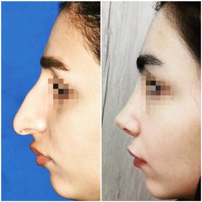 نمونه کار جراحی بینی دکتر نورمحمدی2