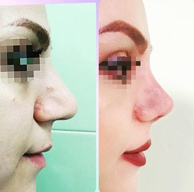 نمونه کار جراحی بینی دکتر نورمحمدی1