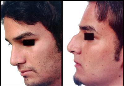 نمونه کار جراحی بینی دکتر رسولی3