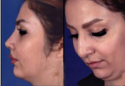 نمونه کار جراحی بینی دکتر رسولی1
