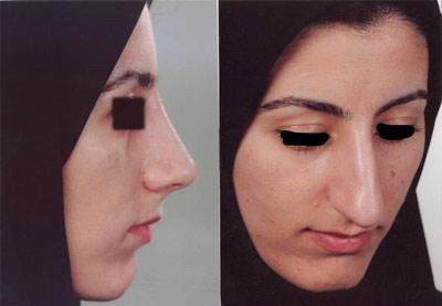 نمونه کار جراحی بینی دکتر رسولی2