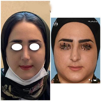 نمونه جراحی بینی دکتر واردی2