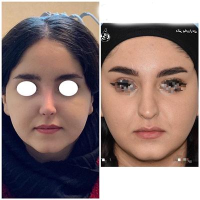 نمونه جراحی بینی دکتر واردی3
