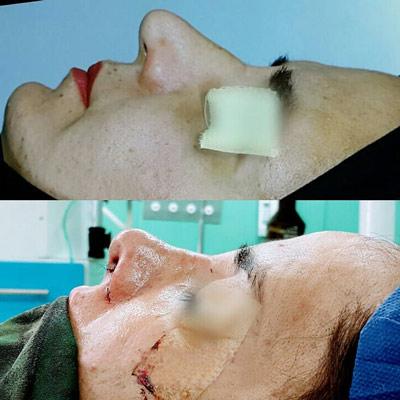 نمونه کار جراحی بینی دکتر صادق منش2
