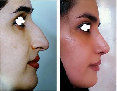 نمونه کار جراحی بینی دکتر صادق منش1