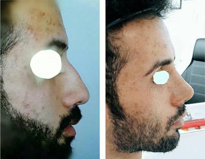 نمونه کار جراحی بینی دکتر صادق منش3