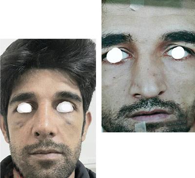 نمونه کار جراحی بینی دکتر صادق منش4