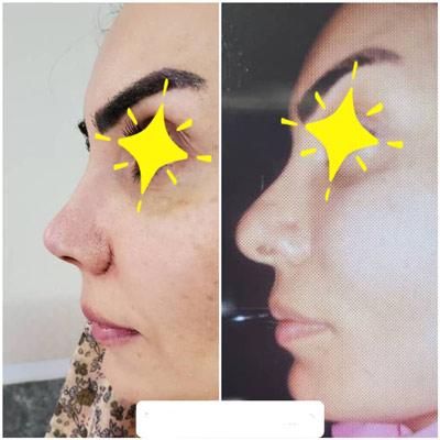 نمونه کار جراحی بینی دکتر حسن طاهری3